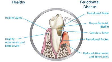 website periodontal disease