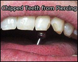 website tongue ring broken tooth